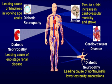 Complications in Diabetes- a brief overview