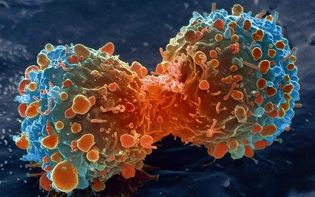 Cancer care for women